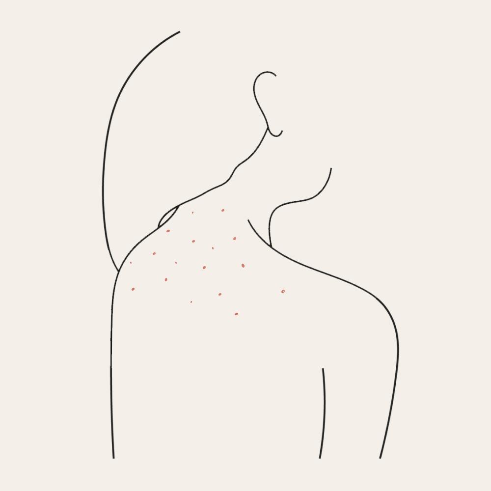 Ні, не соромно. Чому виникають прищі на спині, сідницях і грудях?
