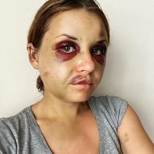 «Прокинулася від ударів по голові». Усе, що відомо про напад на Анастасію Лугову в потязі
